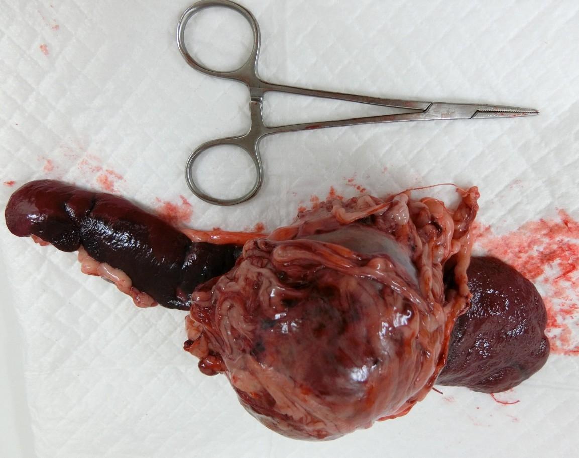 血管肉腫2